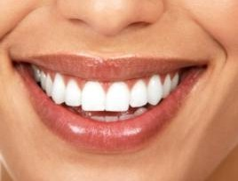 Zoom Whitening @ Vy Wong Dental